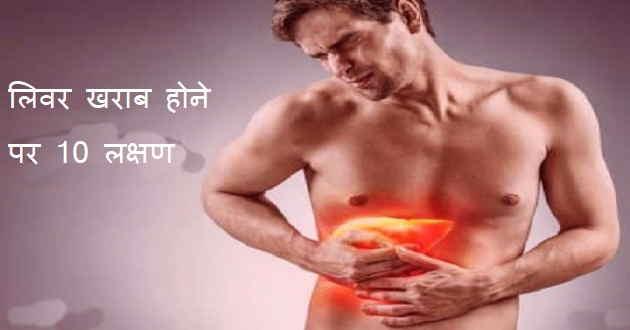 liver failure in hindi