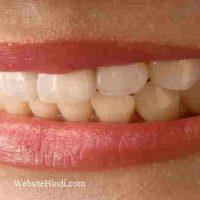 जानिए दांत पीले (Yellow Teeth) क्यों होतें है ? घरेलु उपाय !