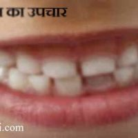 हिलते दांत का उपचार घरेलु उपचार व नुस्खे |