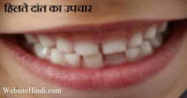 7-quick-tips-regarding-hilte-teeth-ko-majboot-kaise-kare