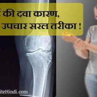 जोड़ों में दर्द की दवा कारण, लक्षण और उपचार हिंदी में !