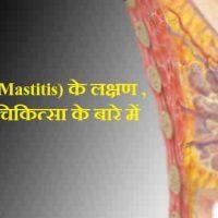 स्तन शोथ (Mastitis) क्या है ? मस्तिटिस के कारण लक्षण और चिकित्सा हिंदी में जानकारी |
