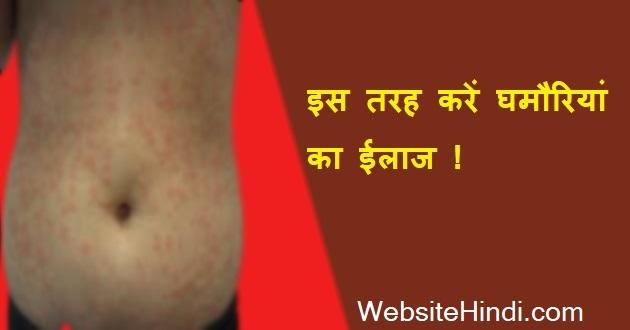 ghamoriya-treatment-home-hindi