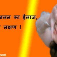 आंखों में जलन (Aankhon Mein Jalan) का ईलाज, कारण और लक्षण !